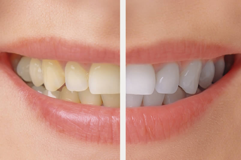 Teeth Bleaching in Philadelphia