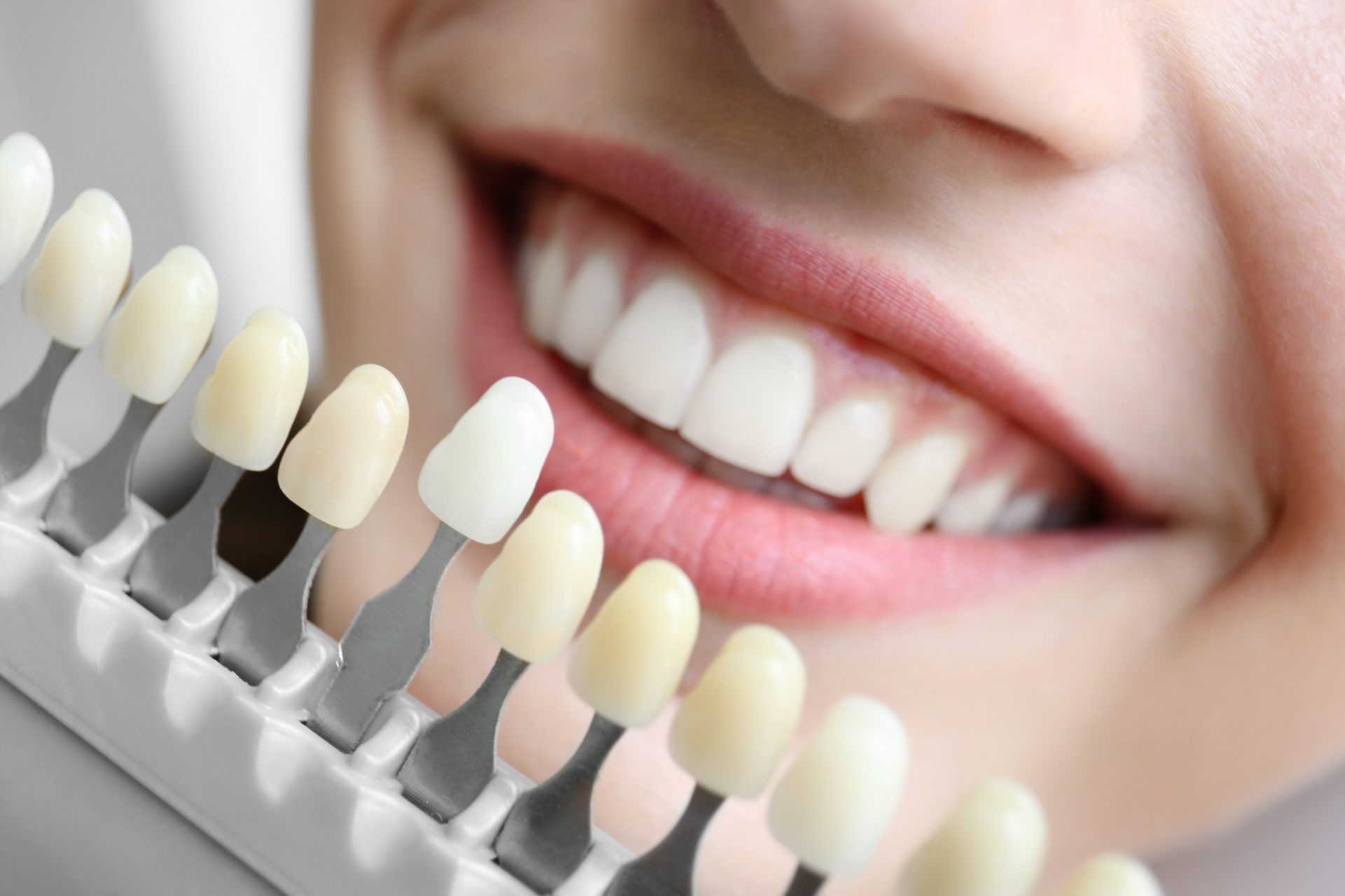 dental implants in philadelphia